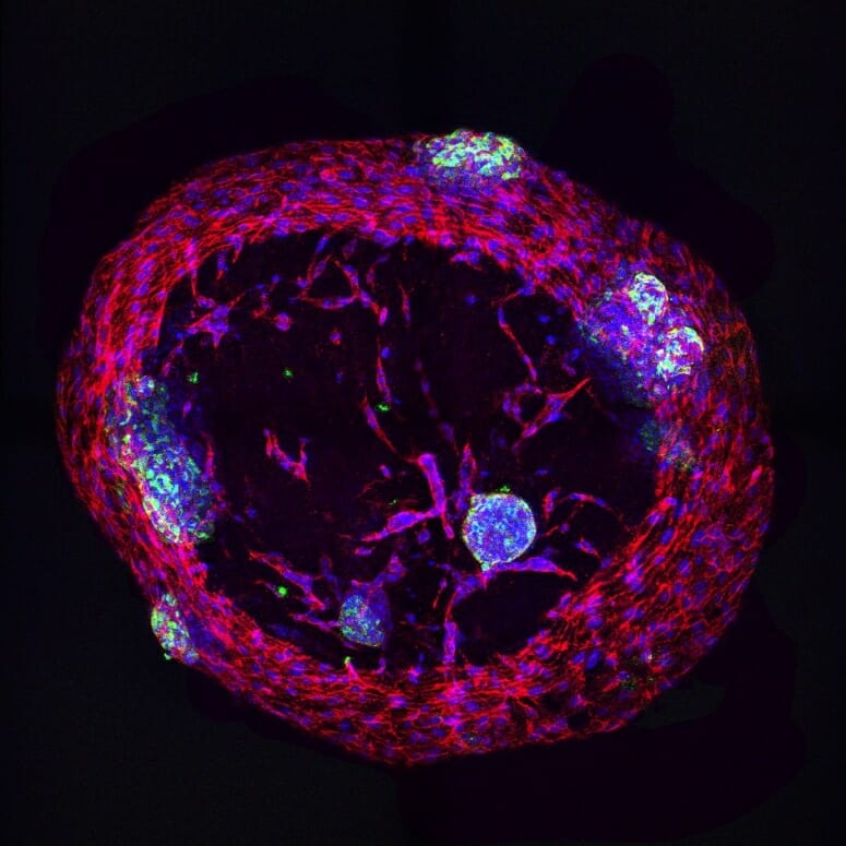 insulin-producing cells
