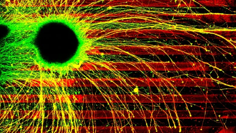 The yellow connecting arms, called axons, of diseased human brain cells grow willy-nilly across boundaries of inhibitory chemicals (the red stripes). Healthy axons would precisely follow the dark lanes, giving researchers the opportunity to test the effects of disease-causing mutations on axon growth.